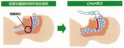 CPAP療法の効果イラスト